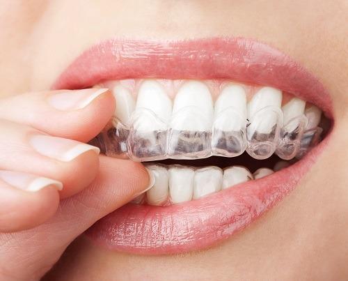 Una funda de plástico para proteger tus dientes es la solución en caso de padecer bruxismo