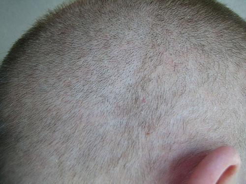 cuero cabelludo2