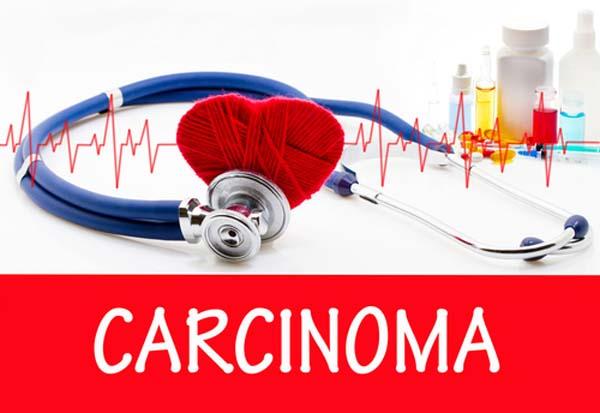 differenza carcinoma e adenocarcinoma