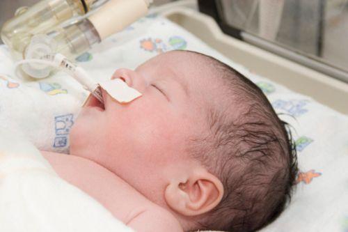 neonato con deformazione